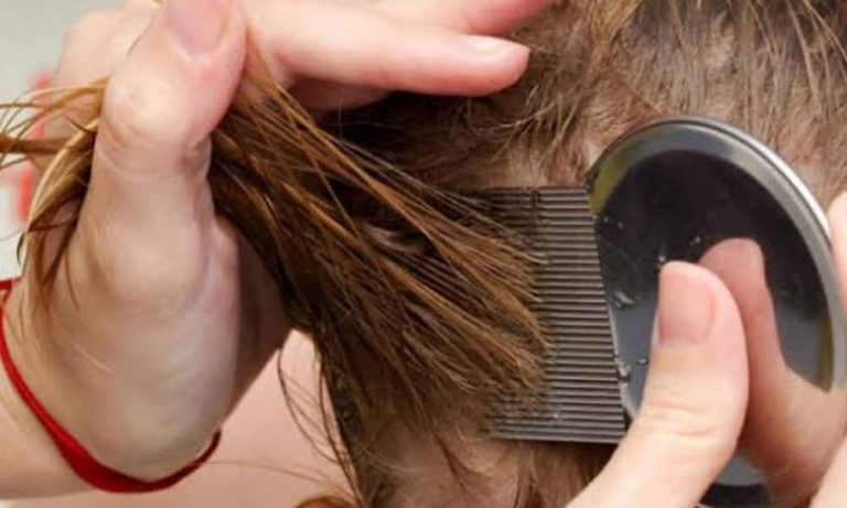Cara Menghilangkan Kutu di Rambut